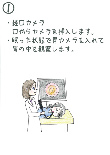 経口カメラ、口からカメラを挿入します。、眠った状態で胃カメラを入れて胃の中を観察します